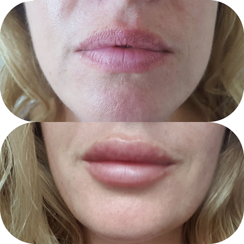 hedox-clinic-london-lip-fillers