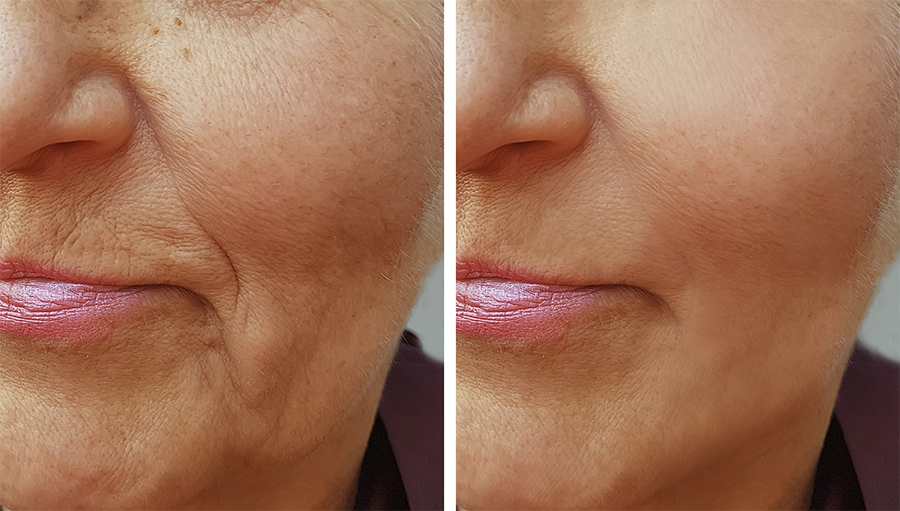 smile-line-fillers-hedox-clinic-2
