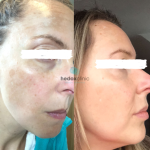 Hedox Obagi Nu-derm before and after 1