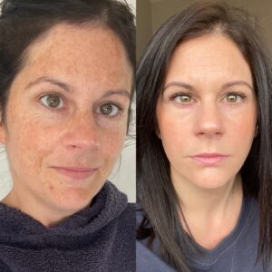 zo skin brightening program before and after