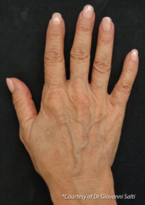 Profhilo before and after face hand1