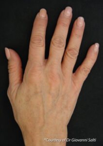 Profhilo before and after hand