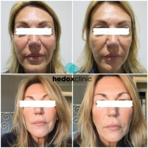 What is a Non-surgical face lift 1