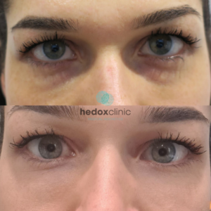 Benefits of Tear Trough Fillers