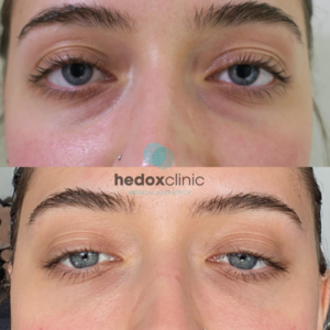 Benefits of Tear Trough Fillers 1