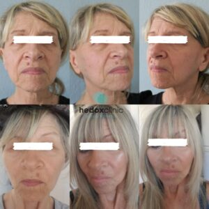 What is a Non-surgical face lift 3